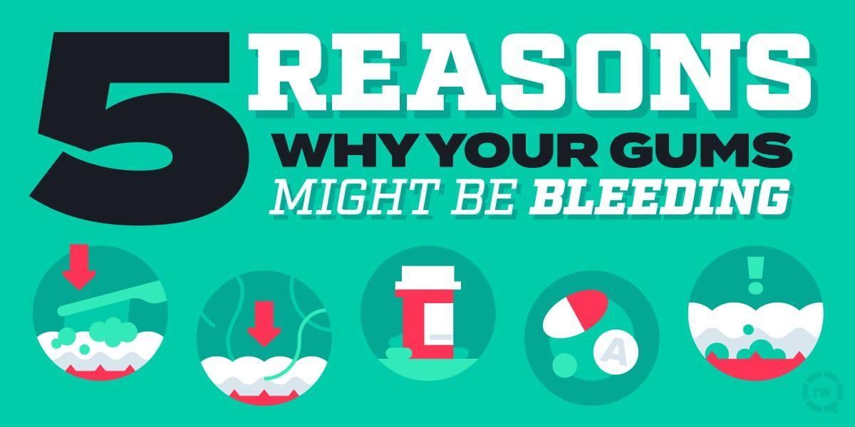 5 Reasons Why Your Gums Might Be Bleeding