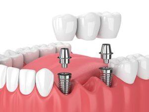 Dental Bridge Computer Illustration