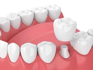 Dental crown 3d illustration