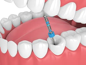 Root Canal 3d model