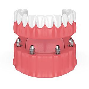 Total Teeth Implant